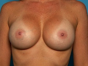 Breast Augmentation after 133690