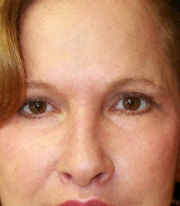 blepharoplasty after 309062