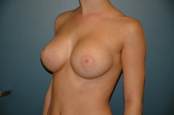 Adjustable breast augmentation