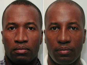 Ethnic Rhinoplasty - African American Male before 44103