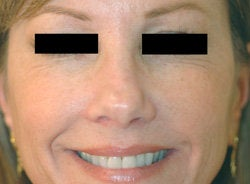 Botox for Crows Feet  after 93348