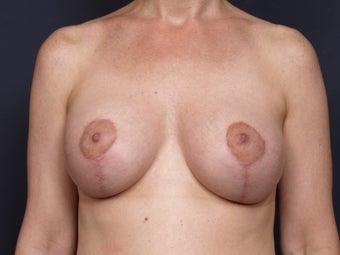 Breast Lift after 140829