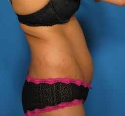 Abdominoplasty 464717