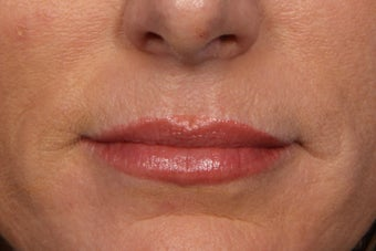Botox  after 309235