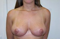 Breast Reduction after 370601