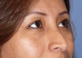 Transconjuctival lower eyelids.  No scar! before 309994
