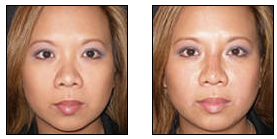 Non-Surgical Nose Job before 627871