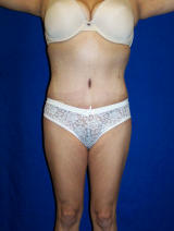 Tummy Tuck Surgery (abdominoplasty) after 129744