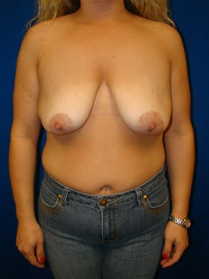 Revisonary Breast Surgery before 114904