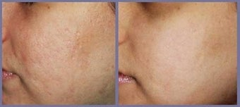 Acne scar smoothing by laser treatment before 6415