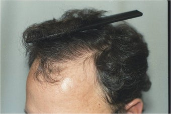 Hair Transplantation after 109450