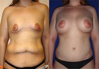 Lower Body lift, Breast Augmentation before 543105