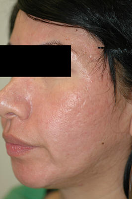 Erbium Laser Resurfacing for Acne Scars after 82973
