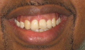 Braces: correction of openbite and dental crowding after 346378