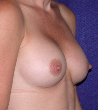 Breast Implants after 520373