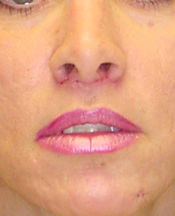 Lip Lift after 635441