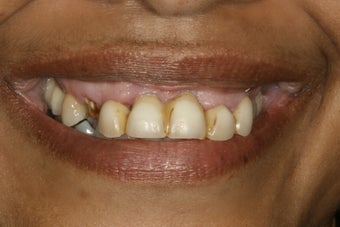Full Mouth Restoration  before 389308