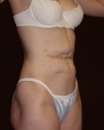 Abdominoplasty before 226266