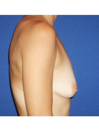 Bilateral periareolar mastopexy augmentation with placement of 421cc smooth silicone breast implants before 249999