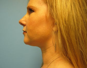 chin liposuction after 287736