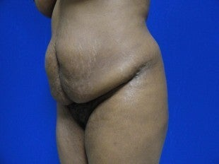 Tummy tuck - side view before 620891