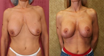 breast deflation after 302668