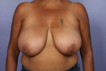 Breast Reduction before 526774