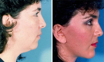 Cheek Lift and Augmentation before 296648