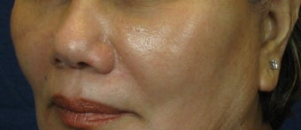 Cheek Lift / Augmentation after 352885
