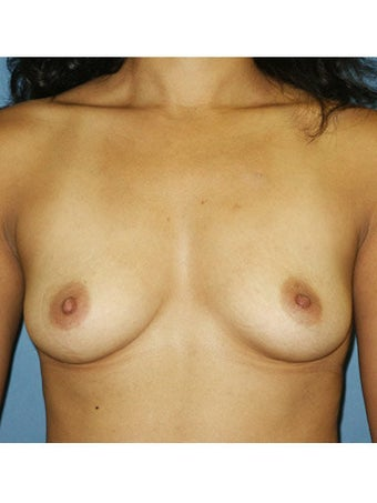 Breast Augmentation before 249928