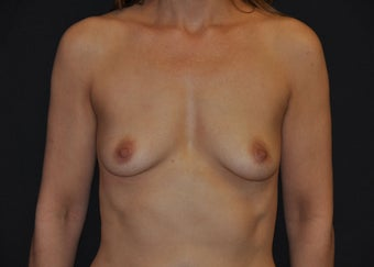 "Bilateral ""dual plane"" breast augmentation before 481485"