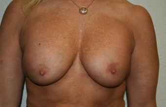 Breast implants before 241853