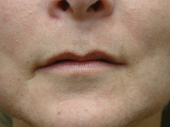 Lip Augmentation before 343222