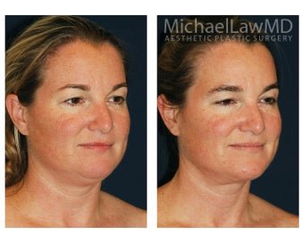 Chin Liposuction after 395803