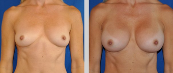 Flash Recovery Breast Augmentation TM before 253914