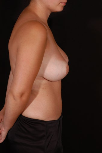 Breast Reduction and Lift after 129903