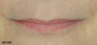 Juvederm - Upper and Lower Lip before 328108