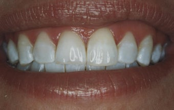 Teeth Whitening after 485396