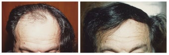 Hair Transplant before 369161