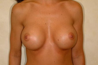 Breast Augmentation after 84870