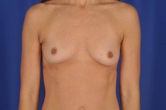 39 year-old woman desired breast implants before 634063