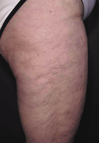 Cellulite treatment before 113274