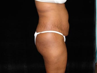 Standard Abdominoplasty  before 203400