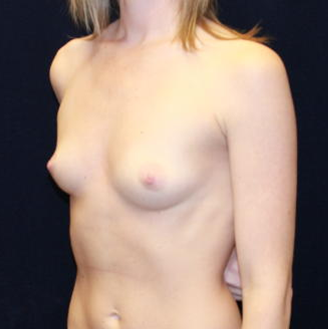 Breast Augmentation before 477418
