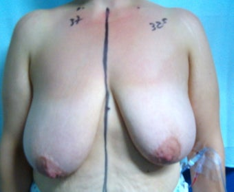Breast Reduction 616401