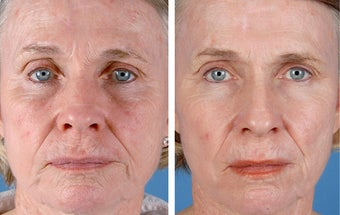 Active FX Fractional Laser Resurfacing before 253993