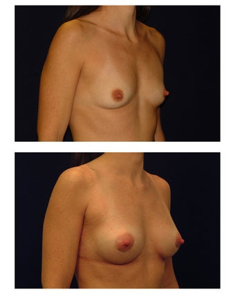 Breast Augmentation before 149520