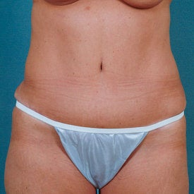 Tummy Tuck after 313076