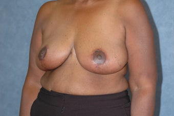 Breast lift after 480625