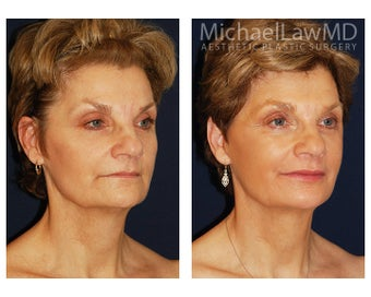 Facial Rejuvenation - Fat Transfer after 395457